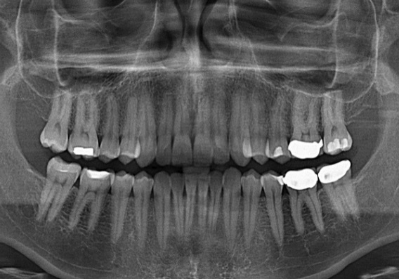 Panoramic radiography for best dental results